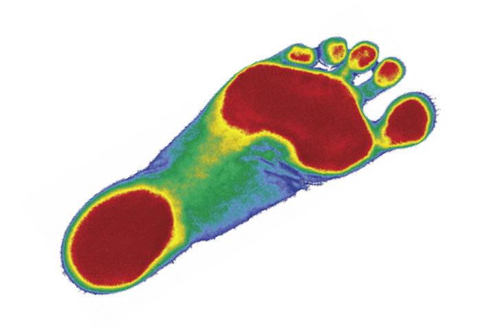 Foot Pressure